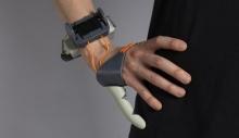 ბრიტანელმა სტუდენტმა დამატებითი ხელის თითი შექმნა